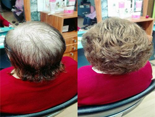 pelucas oncológicas Palencia