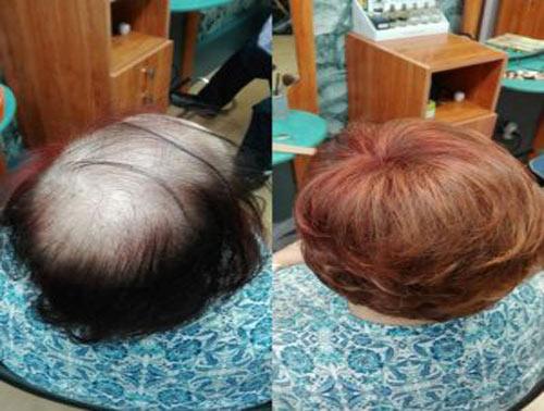 presupuesto peluca oncológica Palencia